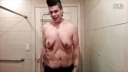 """美国男子减肥270磅 全身皮肤变成松""""面团"""