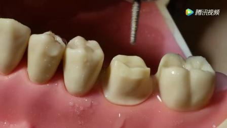 模拟烤瓷牙修复中备牙的全过程