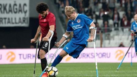 他向世界证明, 只有一条腿依然可以成为足球巨星