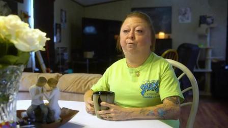 女子患罕见怪病, 30岁的她看起来像60岁!