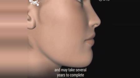 动画演示牙齿矫正全过程视频
