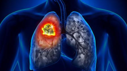 一旦皮肤上长出这种疙瘩,说明肺癌来了,别再视而不见