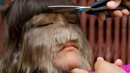 全球体毛最长的女孩,看到脱毛后的样子,网友又不淡定了!