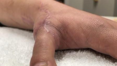 移花接木!美国男子失去拇指医生用脚趾接上