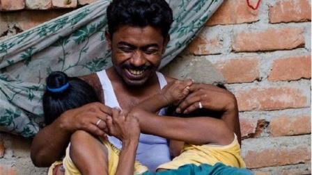连体姐妹共用下半身40多年,嫁给同一位男人,婚后生活令人心疼