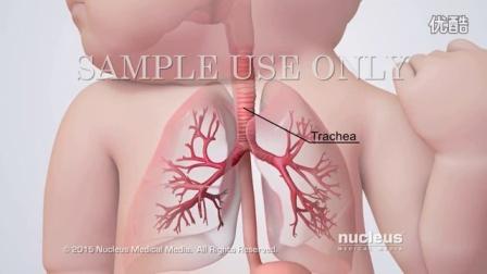 医学动画:气管食管瘘修复