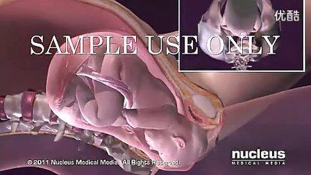 正常分娩和宫颈管消失及宫口扩张