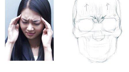 头皮ct解剖层次结构图