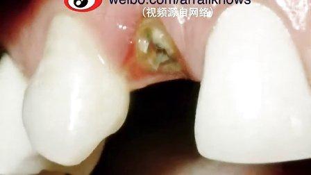 该走的走,拔掉不能保留的龋齿#牙齿问题-瑞尔知道##口腔科普#