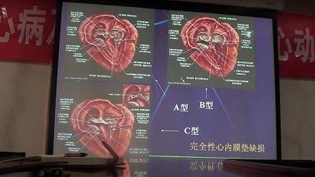 心脏超声解剖(苏俊武医生 安贞医院)