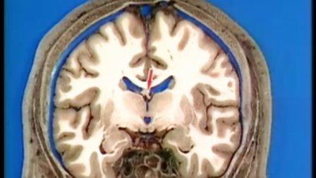 头颅横断层解剖视频