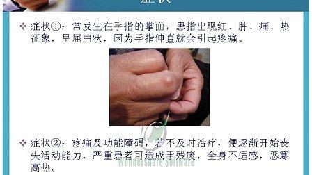 手腕腱鞘炎的偏方图片