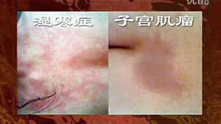 已经失传的中国医学民间传统泥灸蜡泥操作细节包花视频教学图片