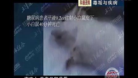 毒垢与疾病(000000096-000740982)视频