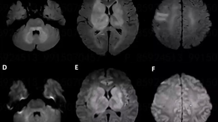 非血管因素弥漫性脑白质病的MRI鉴别诊断