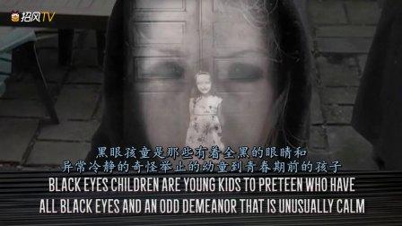 奇闻异事:没有眼白的男孩!