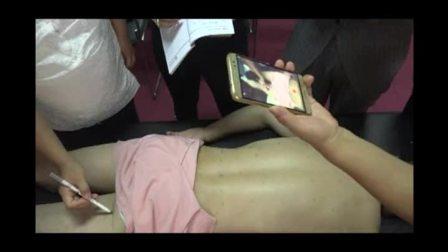 中医奇穴针灸减肥操作视频