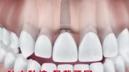 健存口腔 | 烤瓷牙和种植牙的区别,看完秒懂!