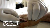 超越人类:人体植入芯片