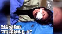 丽江被打女子获道歉 医生表示: 她的脸绝不可能复原了