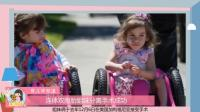 2岁连体双胞胎女孩, 每天靠三条腿走路, 如今这般模样让人羡慕