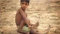 印度男童天生拥有四只脚, 被印度教徒疯狂膜拜, 但他只想做个普通人!