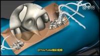 【动画演示: 脊柱侧弯手术全过程】一定要保持正确坐姿,否则一旦发生脊柱侧弯,就会引起身体各种各样的问题。脊柱侧弯有多恐怖,看看手术全过程吧: 切开皮肤...