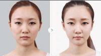 皮肤发黄有色斑怎么办? 每天洗脸的时候加点它, 一个月后脸色嫩白可人