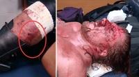 超血腥预警HHH腿被撕去一大块肉 大战后血流满面 讲个笑话WWE假打 肉�K�A残血流勃濡