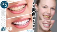 ps摄影后期教学, 牙齿美白的5种方法! 让笑容更自信