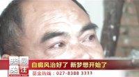 视频: 武汉有哪几家白癜风医院--武汉环亚白癜风医院