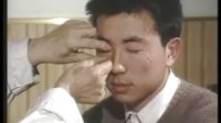 23--眼针疗法