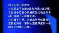 李芳祥全息汤研究所 西医内科学    心绞痛(冠心病) 25