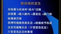 李芳祥全息汤研究所 西医内科学     肺结核 12