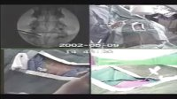 介入治疗腰椎间盘突出手术过程