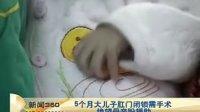 5个月大儿子肛门闭锁需手术  绝望母亲盼援助