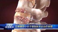 成都京研强直性脊柱炎研究院治疗效果怎么样