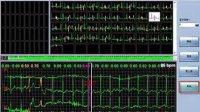 动态心电图分析软件的操作01 01第一集 动态心电图分析软件的操作