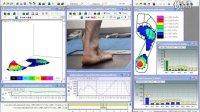 Novle数据分析软件在步态分析中的应用(multimask 分区功能)