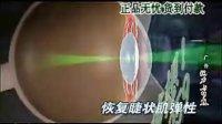阿瞳视力训练恢复仪是不是骗人的 阿瞳真的能治好深度近视吗