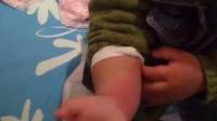 宝宝手被蚊子咬后痒死了