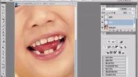 【PSCS6调色教程】如何使用PS弥补牙齿漏洞