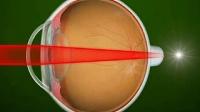 天津准分子激光手术能恢复怎样的视力