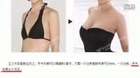 【王明利博士自体脂肪活细胞编码丰胸】能持久吗