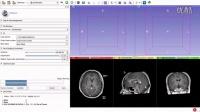 教您使用MRI (DICOM) 数据3D打印人脑模型