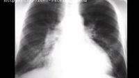 诊断学、内科学呼吸系统疾病的ct诊断(2)》