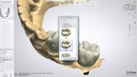 """""""口腔看看""""CAD/CAM MILLING 一颗基牙+两颗种植体,氧化锆全冠设计"""