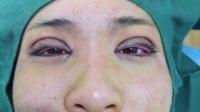 欧式翘睫术 埋线双眼皮 开眼角术 后即刻 东晖学校 教学视频