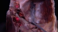 大脑解剖脑膜与颅底内部解剖._标清