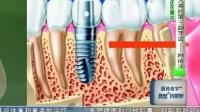 茄子口腔云-人类的第三幅牙齿—种植牙